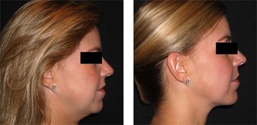 Liposukce Slim Lipo obličeje - ARTE Clinic Brno