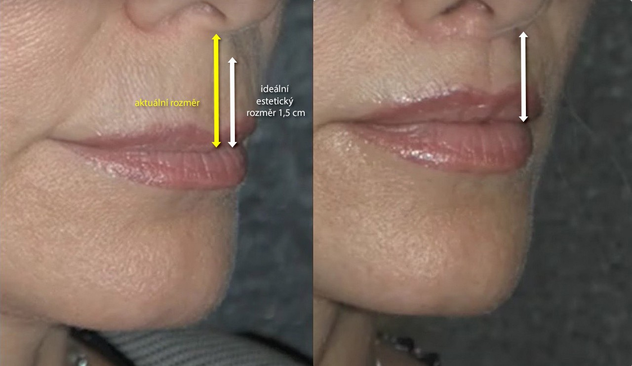 idealni rozmer rtu lip lift