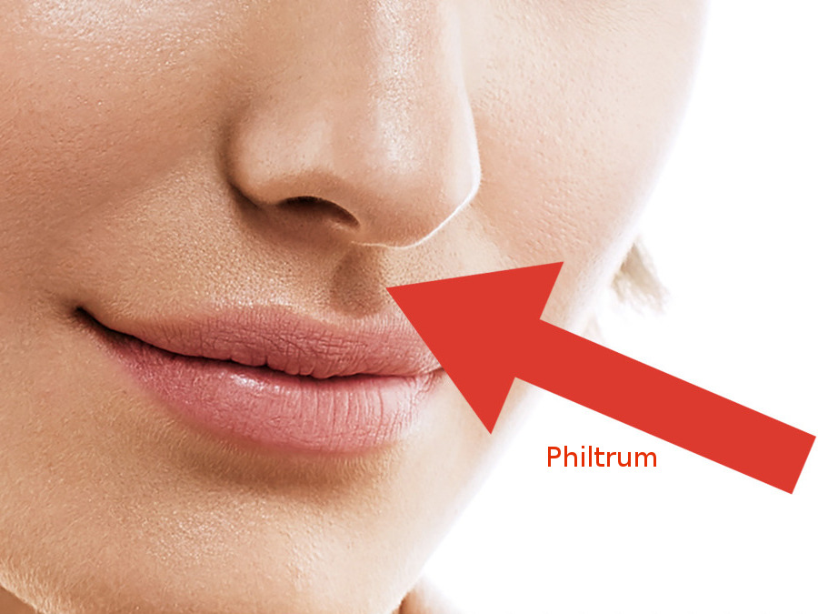 philtrum lip lift