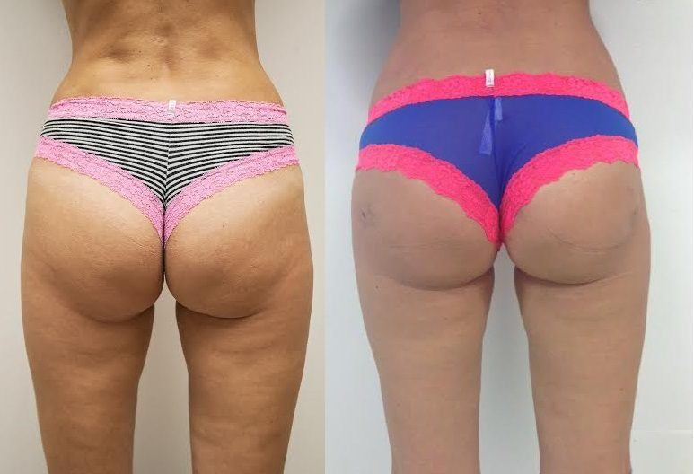 Before and After Buttocks Lift Photos