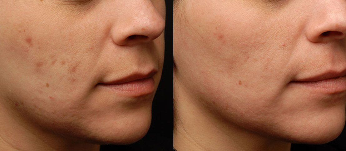 Photos Before and After Treatment of scars and unevenness of skin
