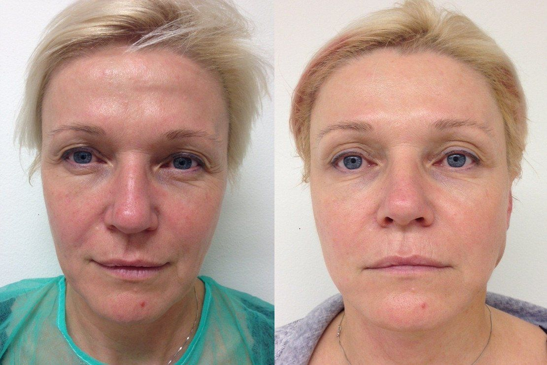 Face Mini lift Before and After procedure