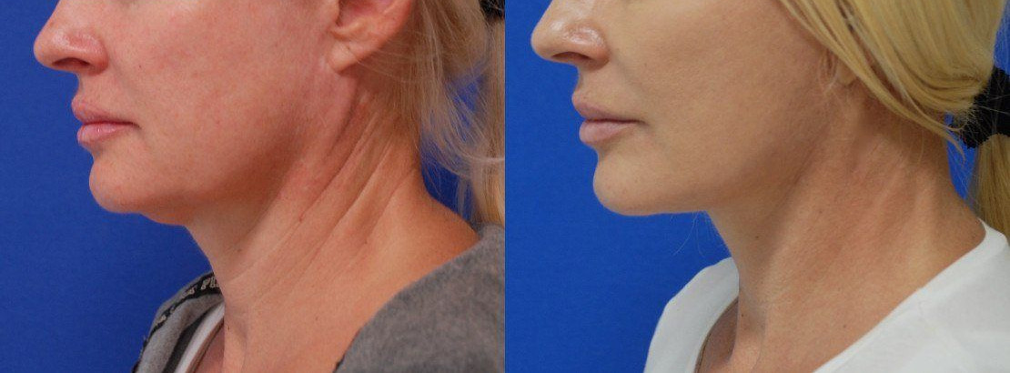 Photos Before and After procedure Neck lift