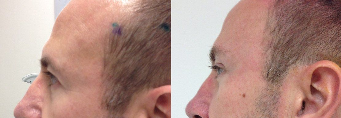 Photos Before and After procedure Endoscopic lift of eyebrows and forehead