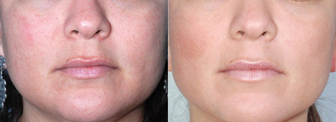 Photos Before and After Removal of pigmentation