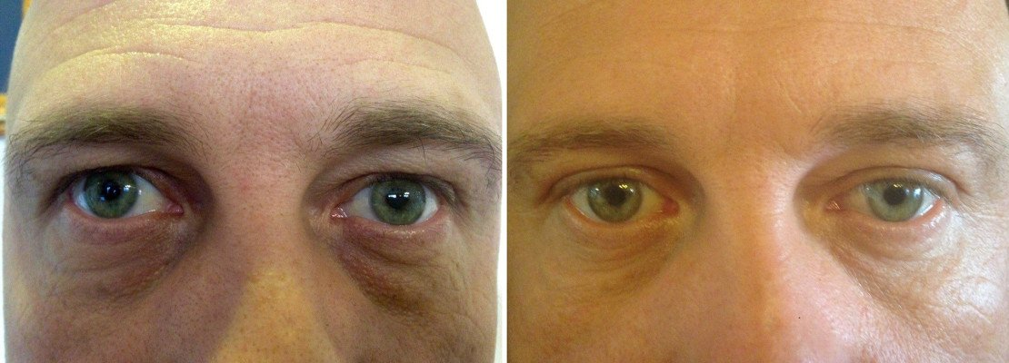 Photos Before and After Plastic surgery of lower eyelids procedure