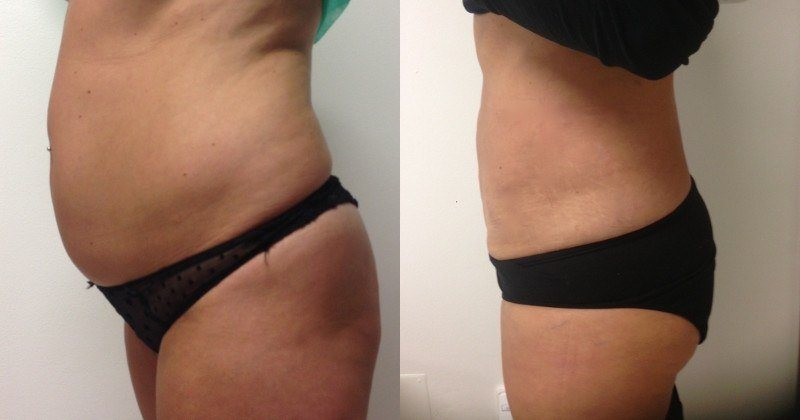 Photos Before and After Tumescent Liposuction