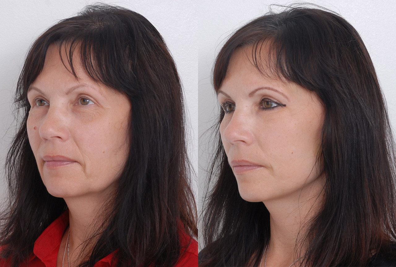 Facelifting Quick Lift - foto před a po