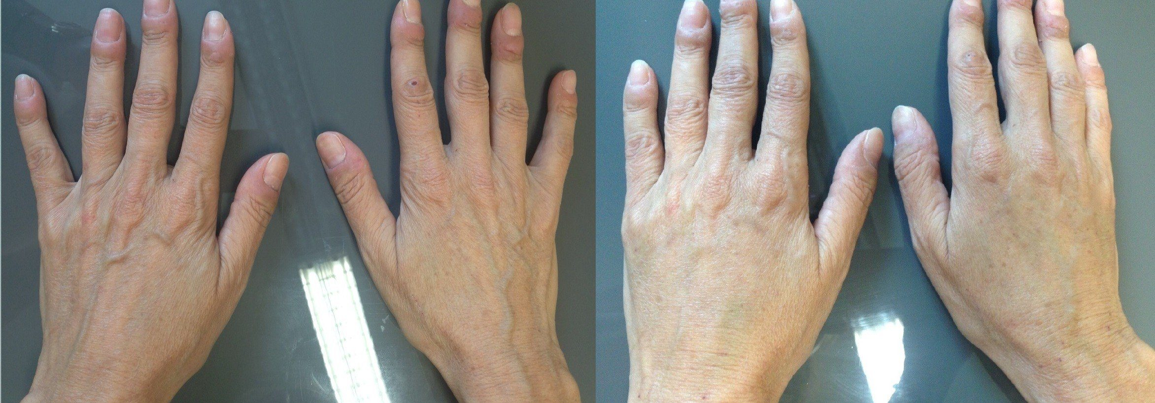 Hands after the treatment SEFFI lipo-filling.