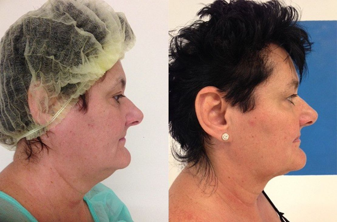 Photos Before and After procedure Removal of double chin